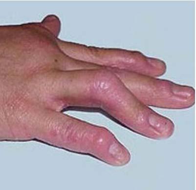 老年患者减缓银屑病发病要怎么做
